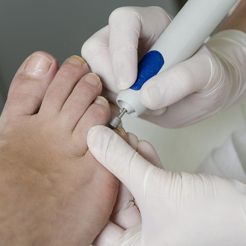 Pedicure behandelingen bij Pedicure Vleuten