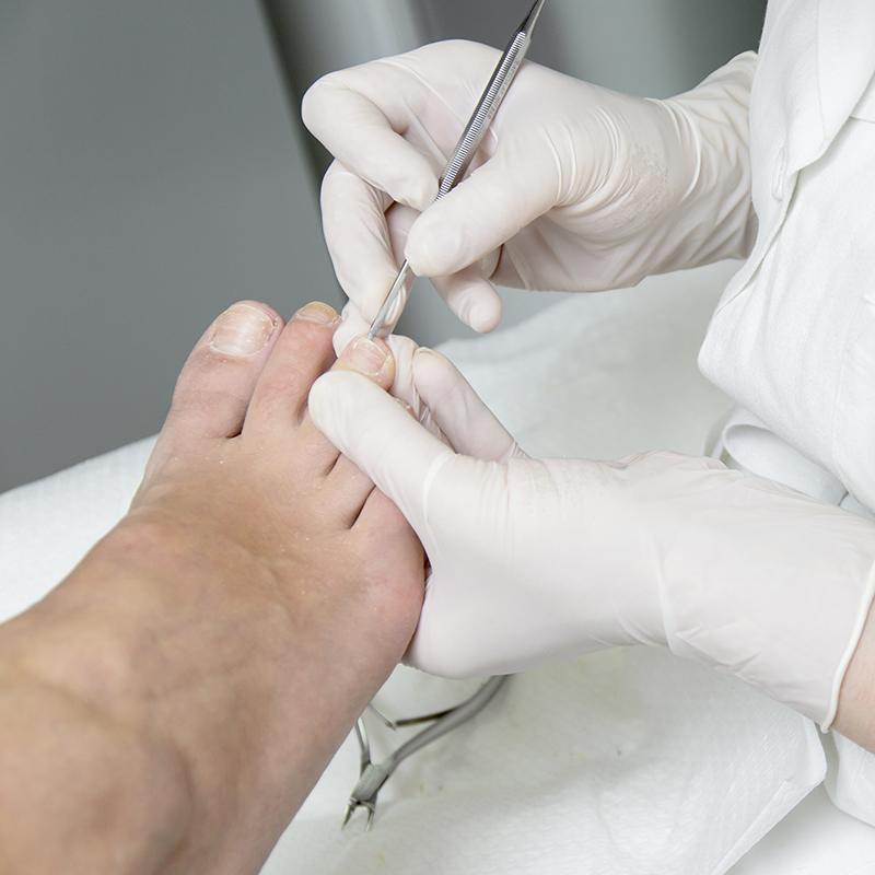 Pedicure deel behandeling bij Pedicure Vleuten