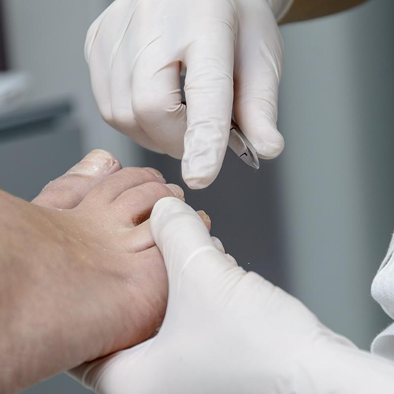 Teennagel correctie bij Pedicure Vleuten
